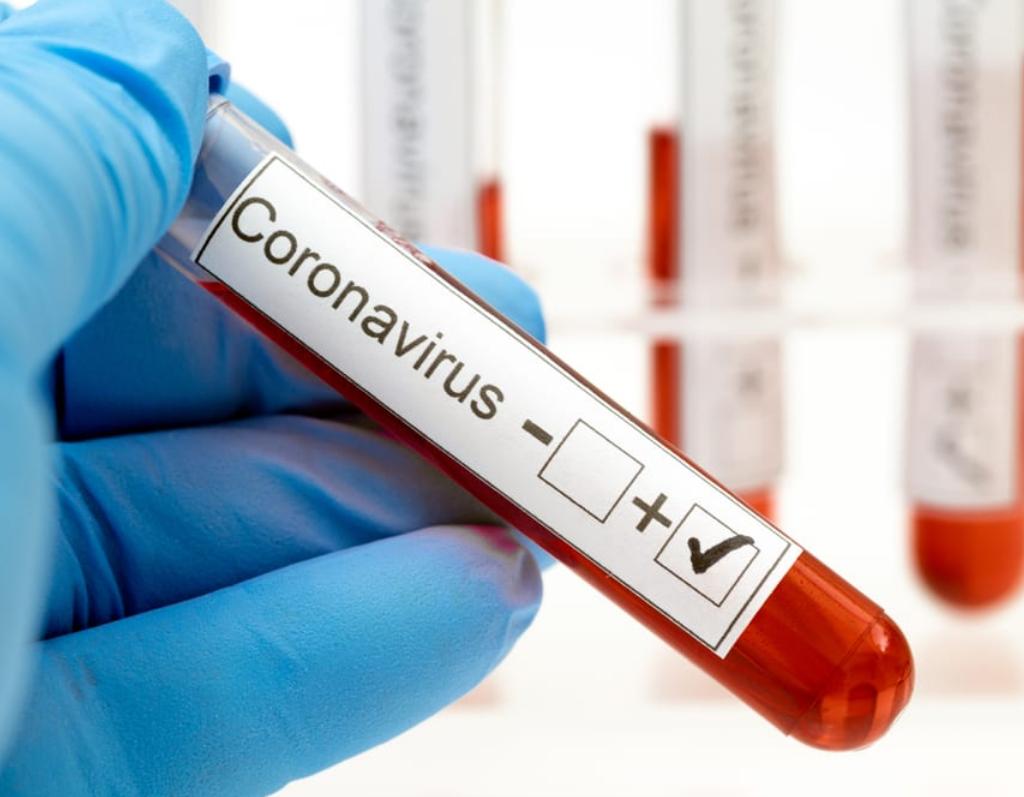 Болезнь коронавирусной инфекцией COVID-2019 2