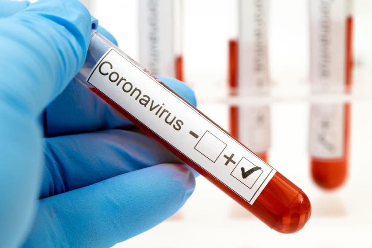 Болезнь коронавирусной инфекцией COVID-2019 1